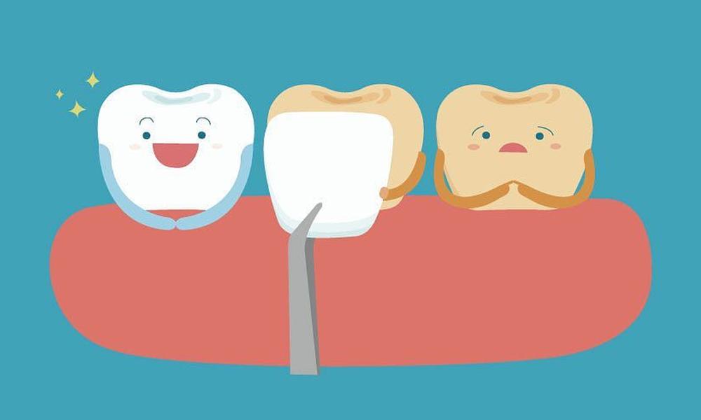 Estetica-dentale-e-faccette
