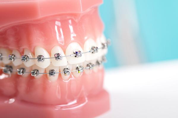 apparecchio-dentale-classico