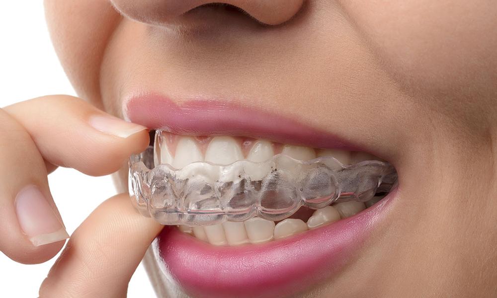 apparecchio-dentale-trasparente