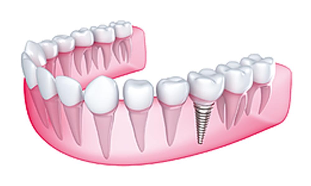 impianto-dentale-singolo